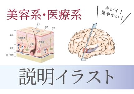 【説明イラスト】医療系・美容系など