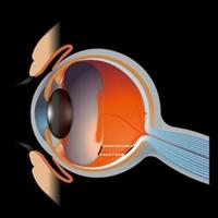 眼の断面 飛蚊症