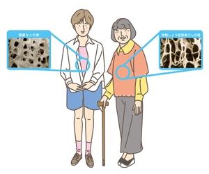 kazunori131さんの骨粗鬆症イラストの書き直しへの提案