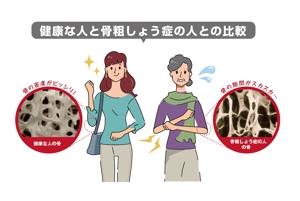sakusimaさんの骨粗鬆症イラストの書き直しへの提案