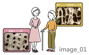 ayakotakahashiさんの骨粗鬆症イラストの書き直しへの提案