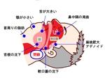 クリニックの疾患解説ページ(睡眠時無呼吸症候群)のイラストへの提案
